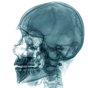 X-ray of a human skull