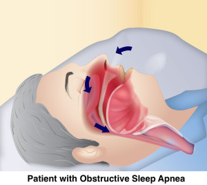 Sleep Apnea final img copy