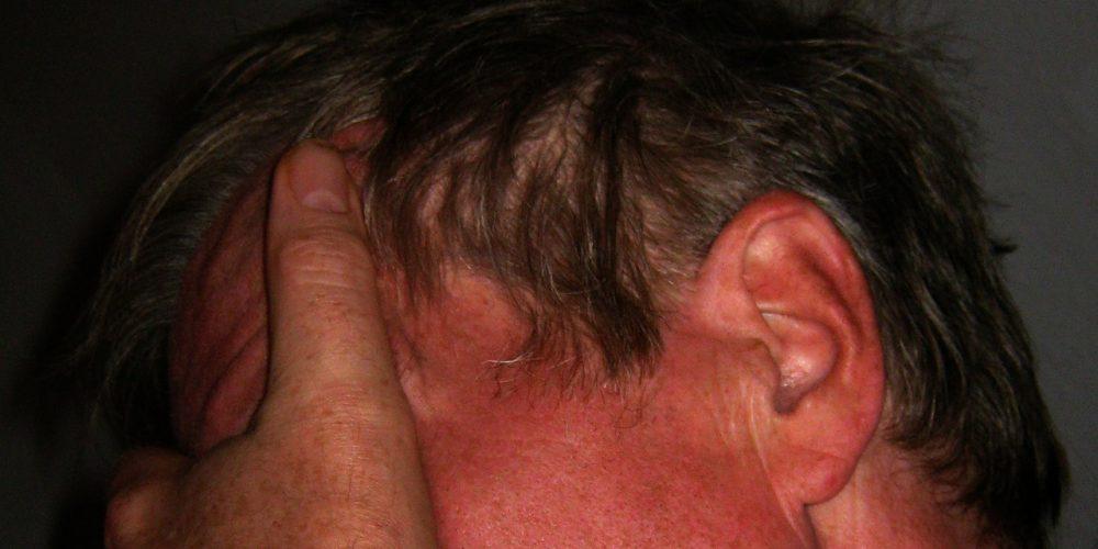 The Recurring Cluster Headache